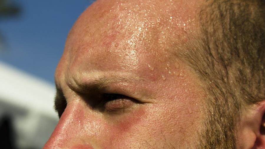 da đầu nhiều dầu và sự oan uổng của sáp osis
